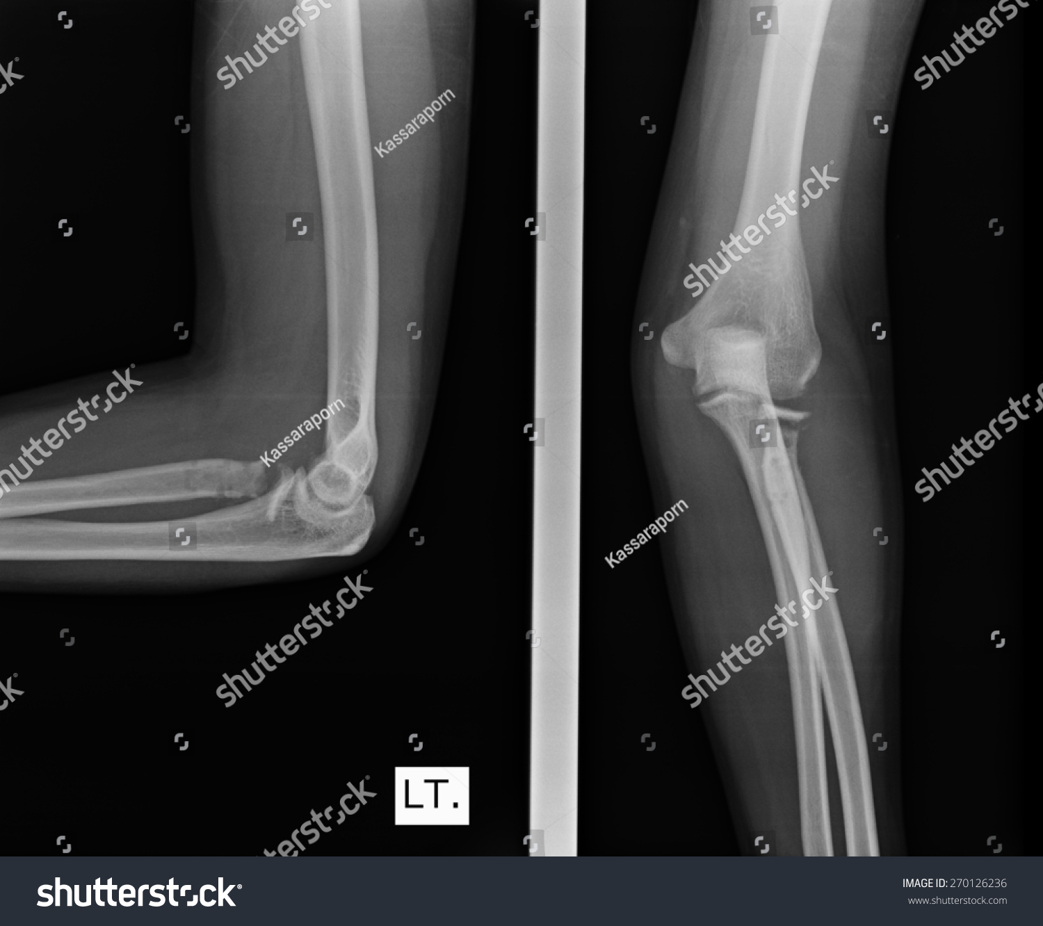 X-ray view of elbow | EZ Canvas