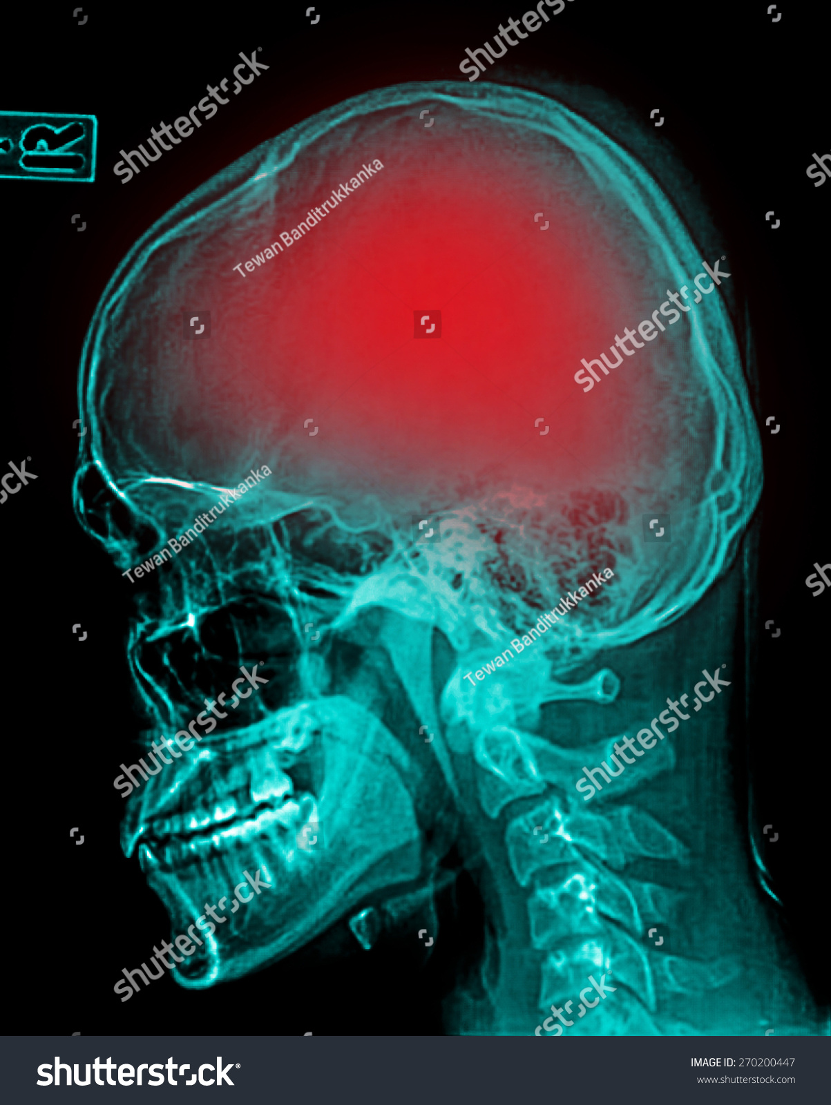 Stroke Cerebrovascular Accident Film Xray Skull Stock Photo (Edit ...