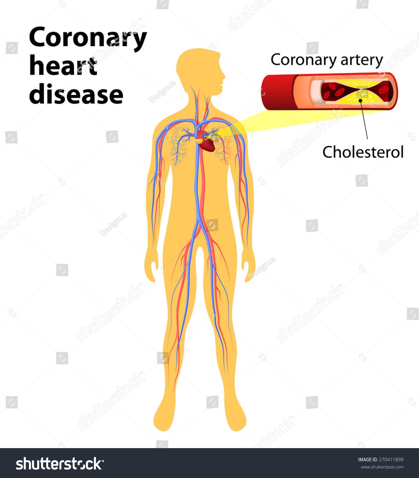 Coronary Artery Disease Human Vascular System Stock Illustration