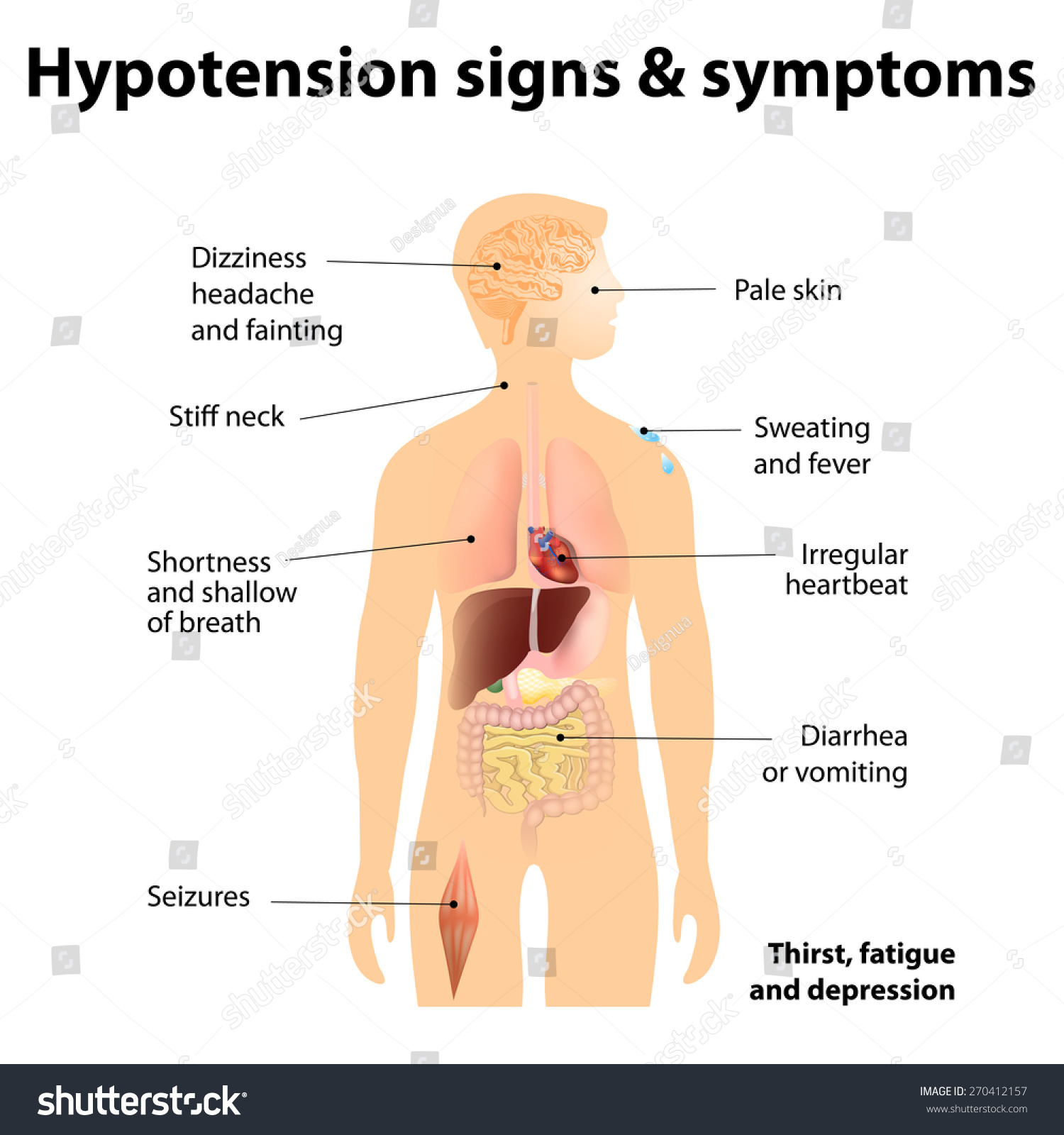 hypotension signs symptoms low blood pressure stock illustration, Skeleton