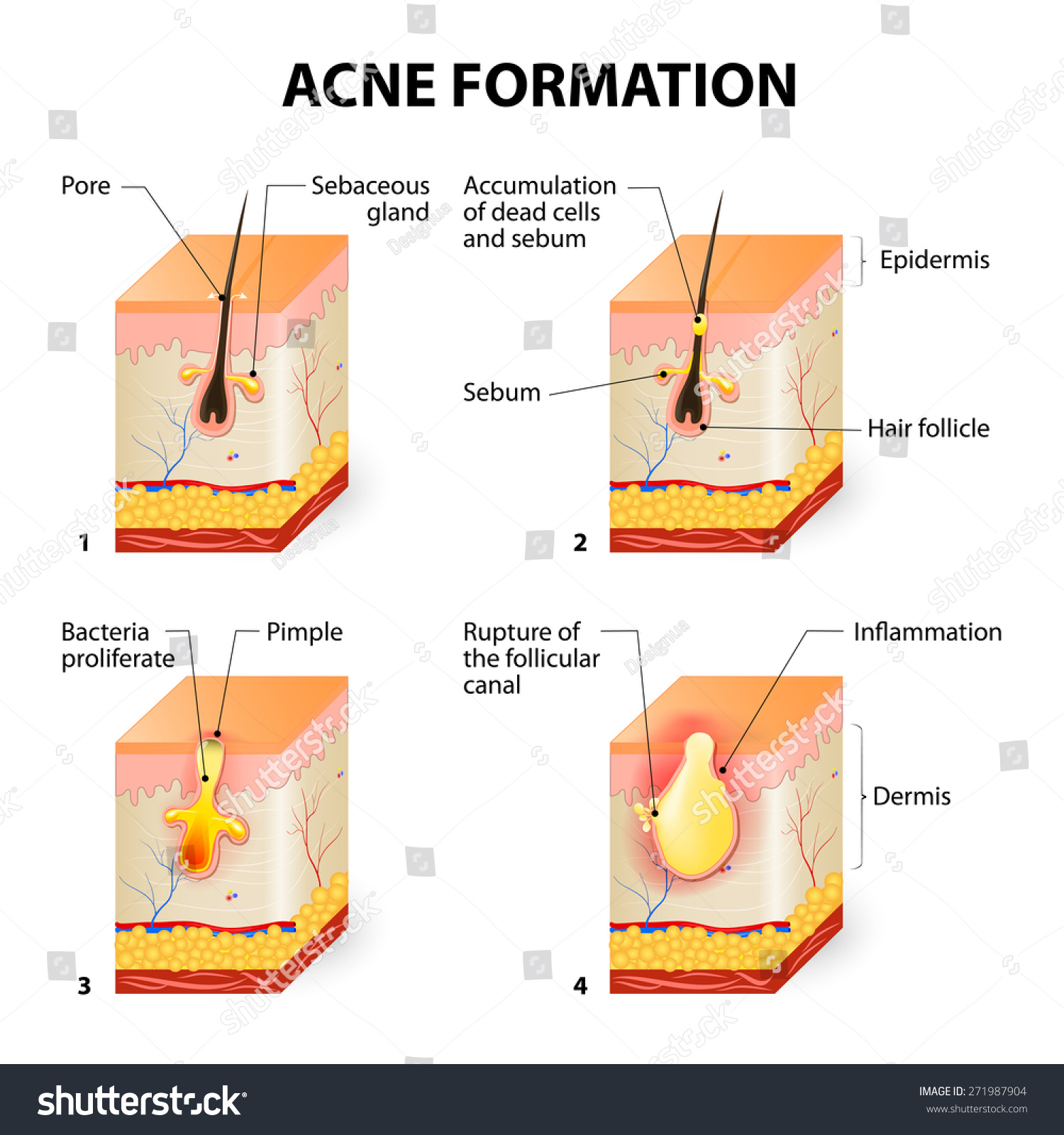 Formation skin acne pimple sebum clogged stock vector 271987904 formation of skin acne or pimple the sebum in the clogged pore promotes the growth pooptronica