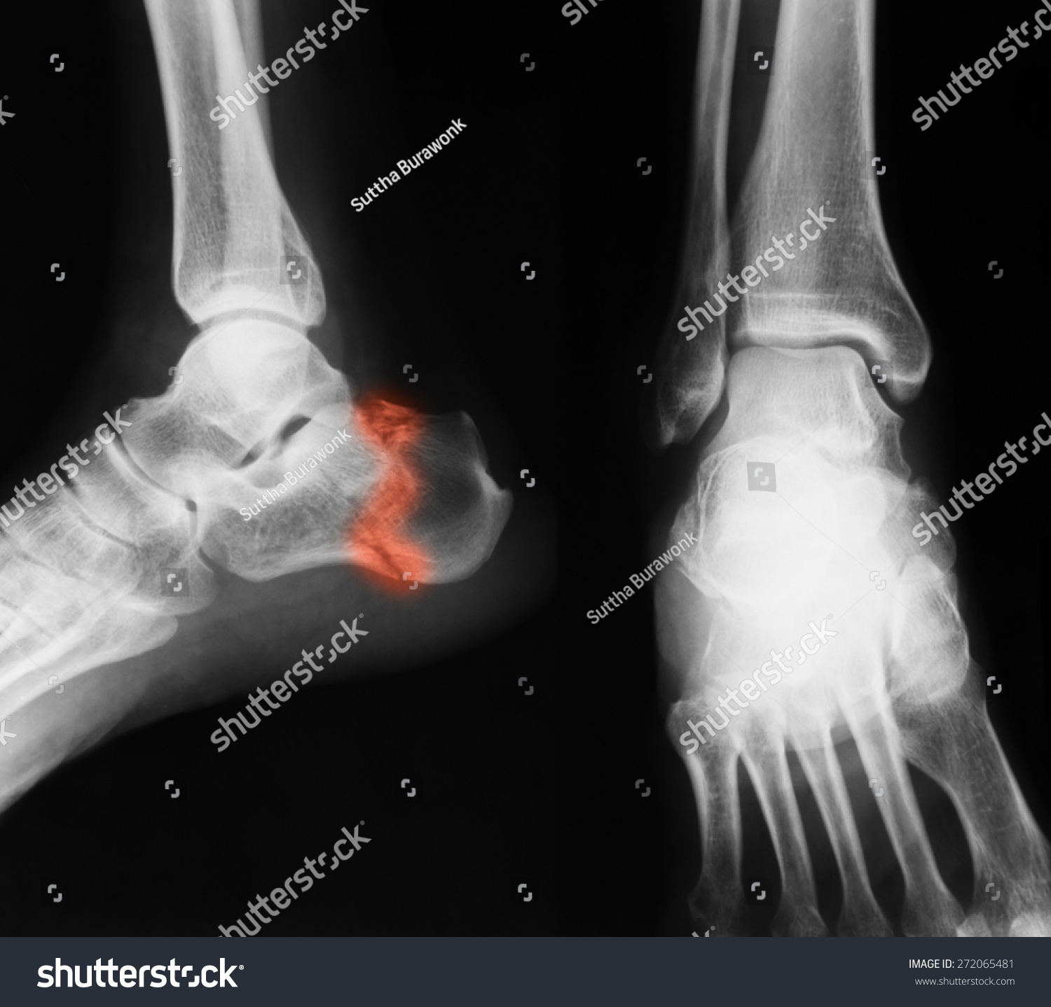 Xray Image Ankle AP Lateral View Stock Photo (Royalty Free ...