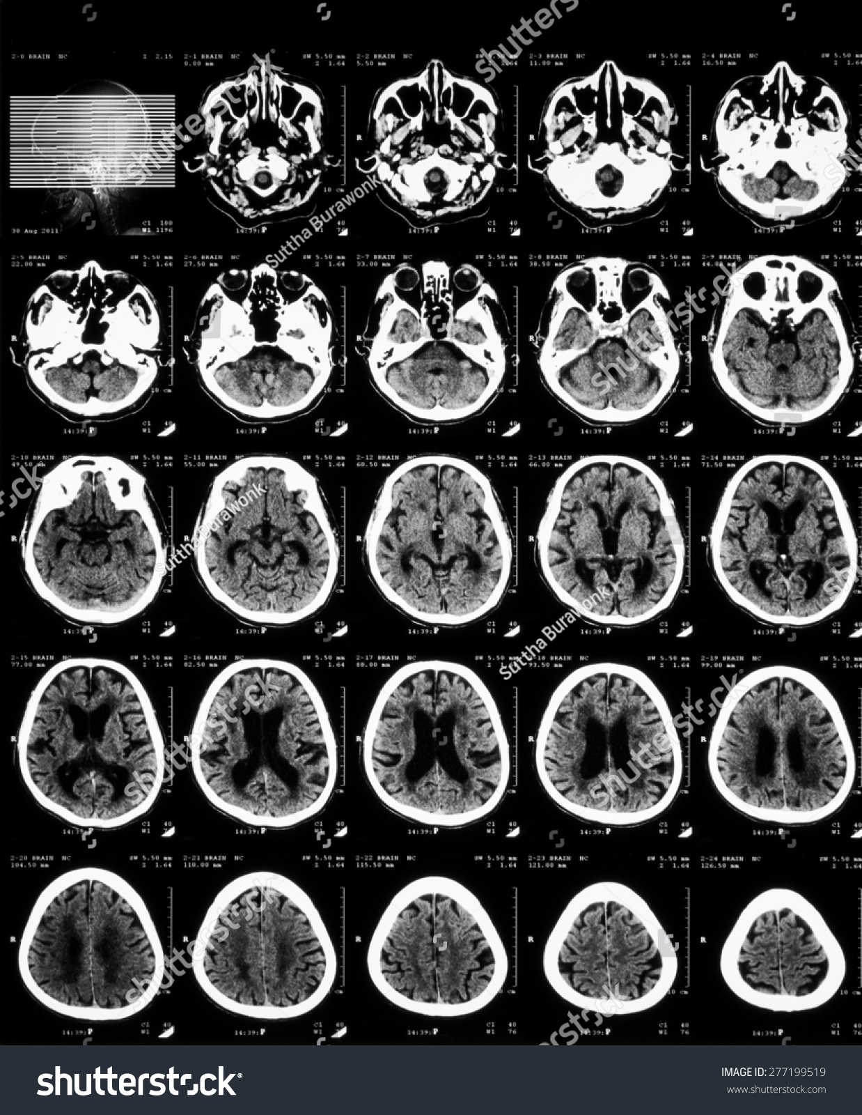 Ct Scan Brain Without Contrast Media Stock Photo 277199519 ...