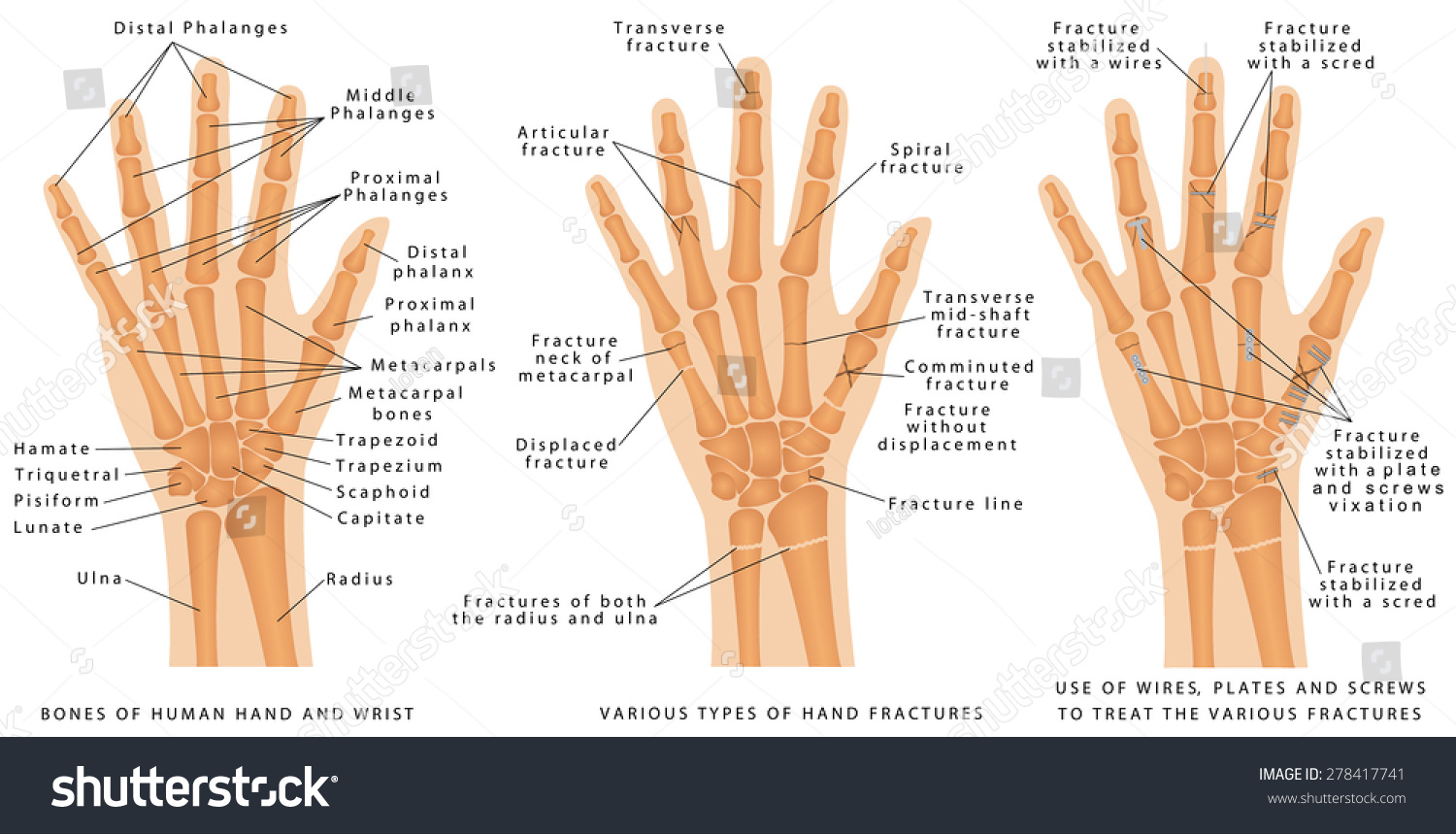 Various Types Hand Fractures Fractures Both Stock Vector Royalty