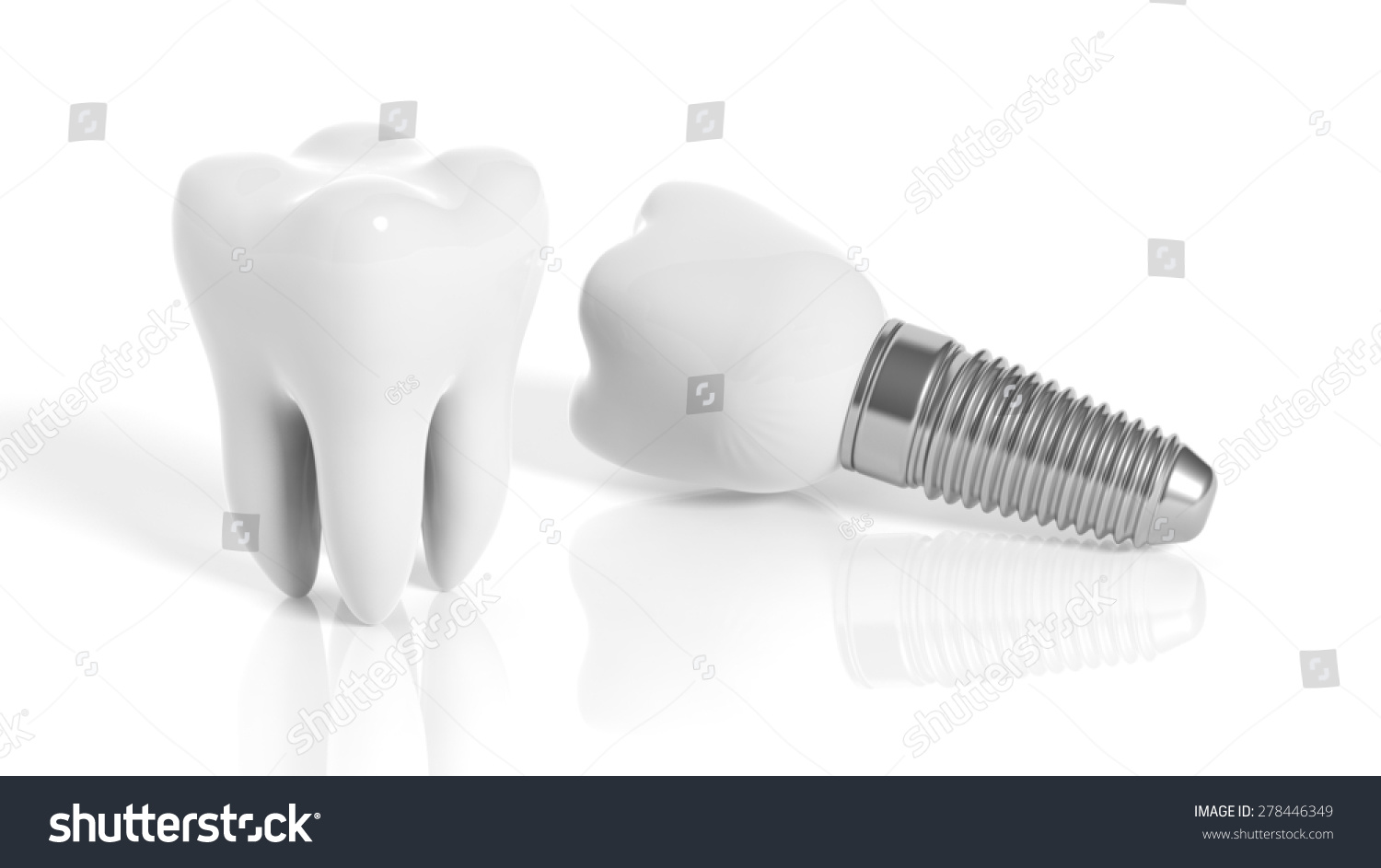 Tooth And Dental Implant Isolated On White Background ... Dental Implant Background