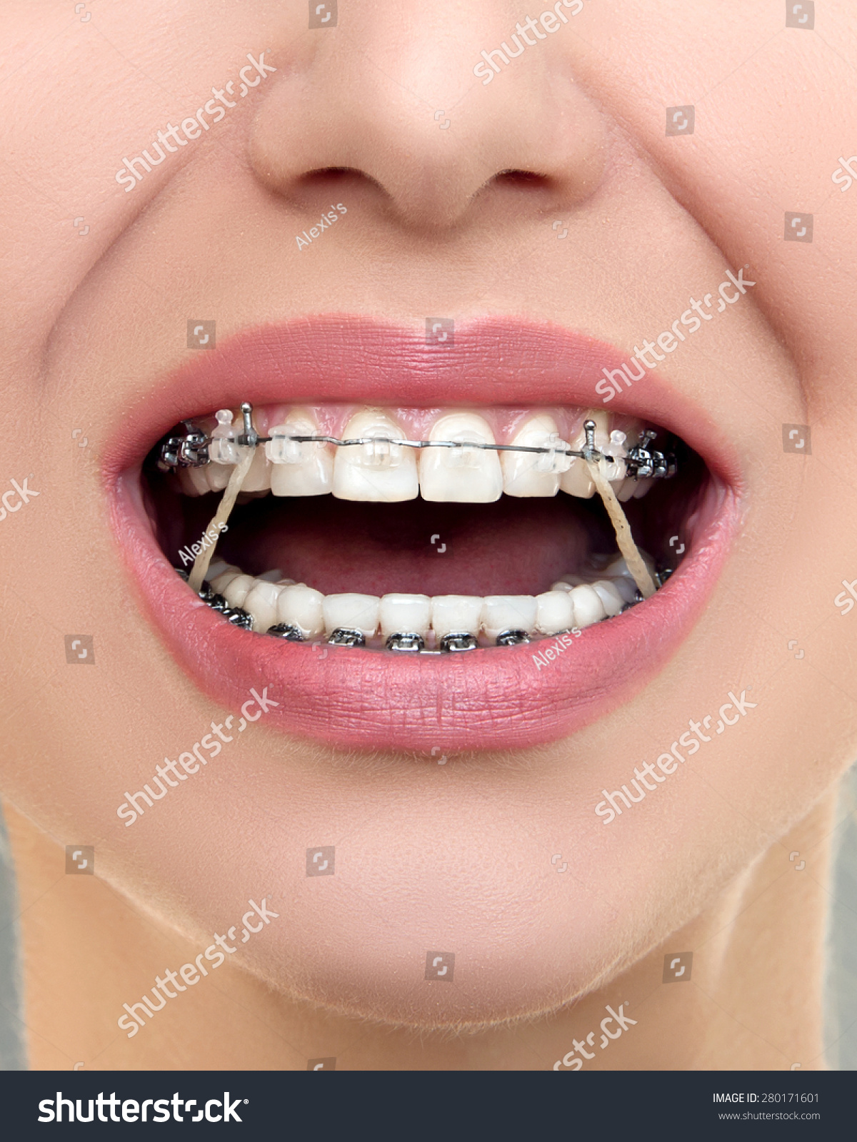 Closeup Ceramic And Metal Braces On Teeth With Elastic
