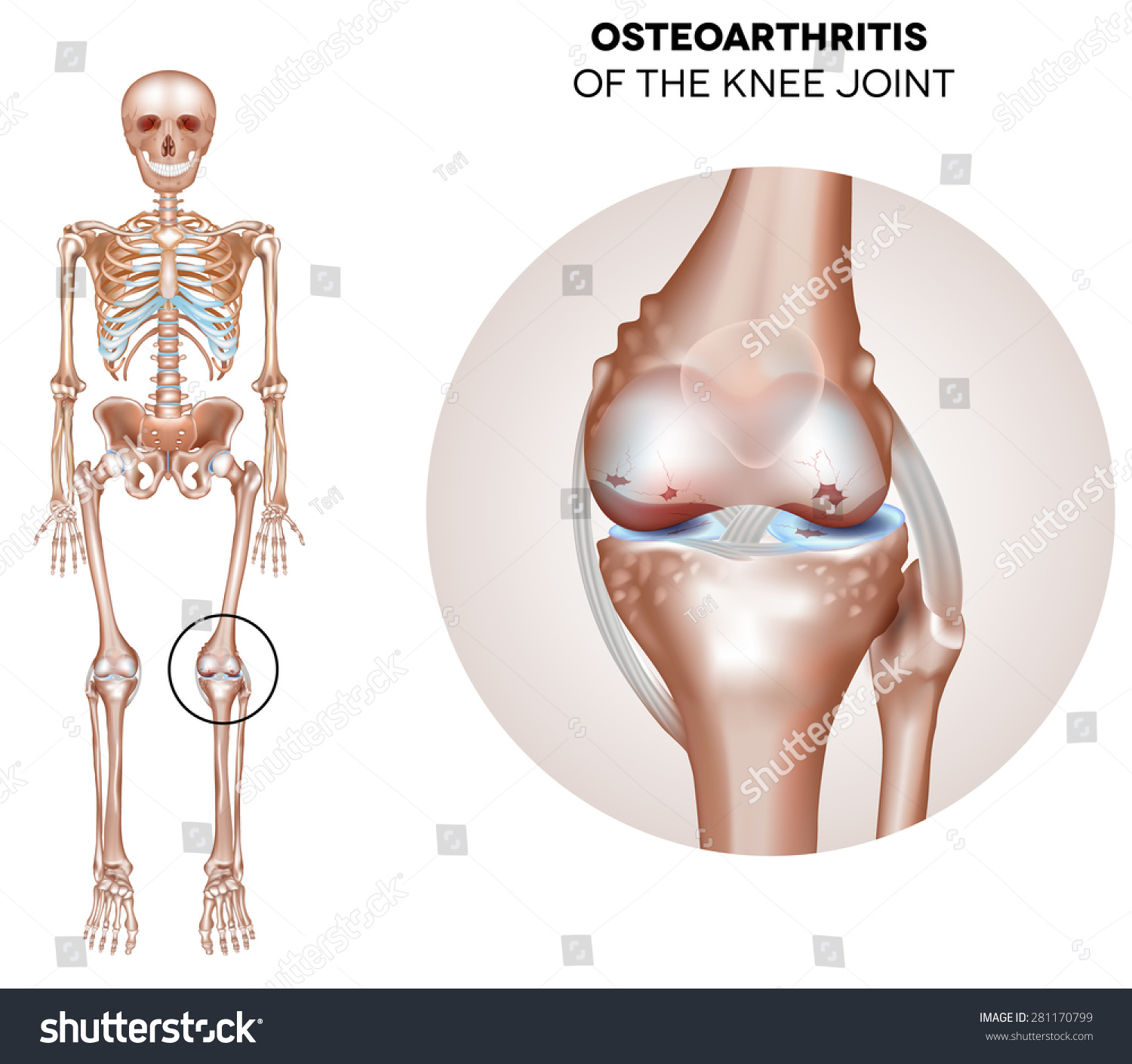 Arthritis Knee Joint Damaged Joint Cartilage Stock Vector Royalty