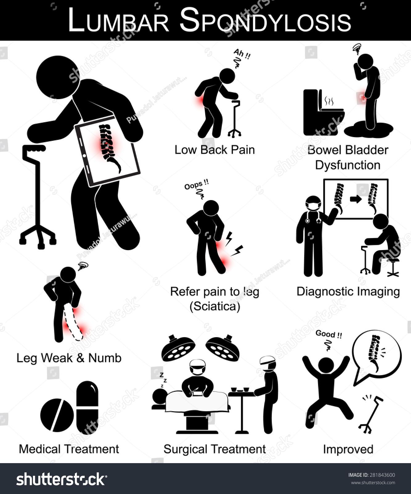 Lumbar Spondylosis Symptoms Pictogram Low Back Stock
