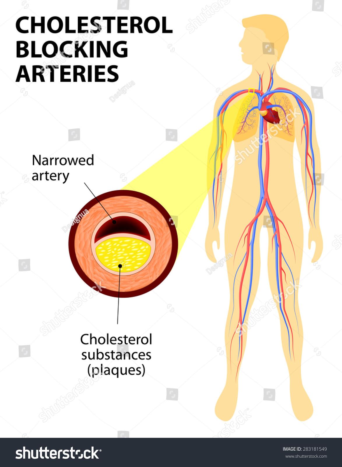 Anatomy Heart Attack Diagram Myocardial Infarction Stock ...