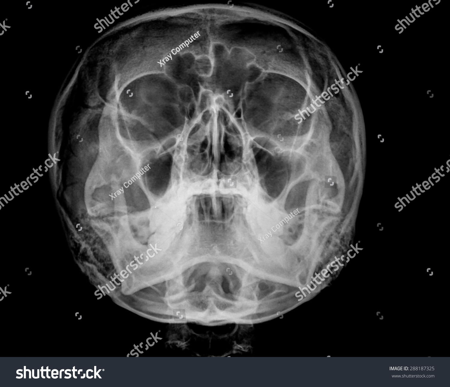X Ray Skull Views Xray Skull Watersview ...