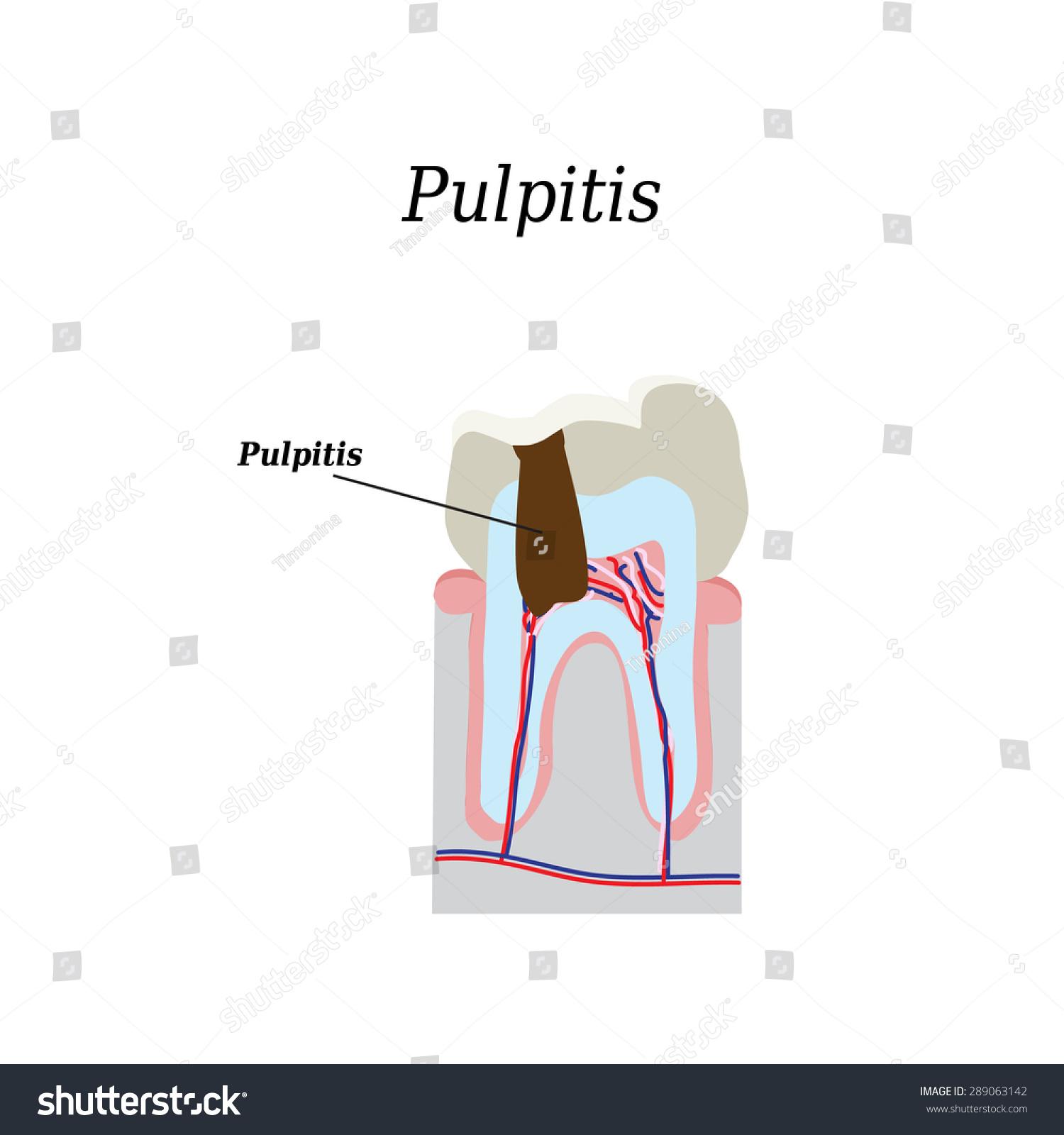 Dental Pulp Vector Illustration On Isolated Stock Vector 289063142 ...