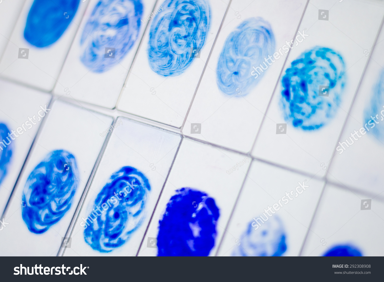 sputum smear for afb test