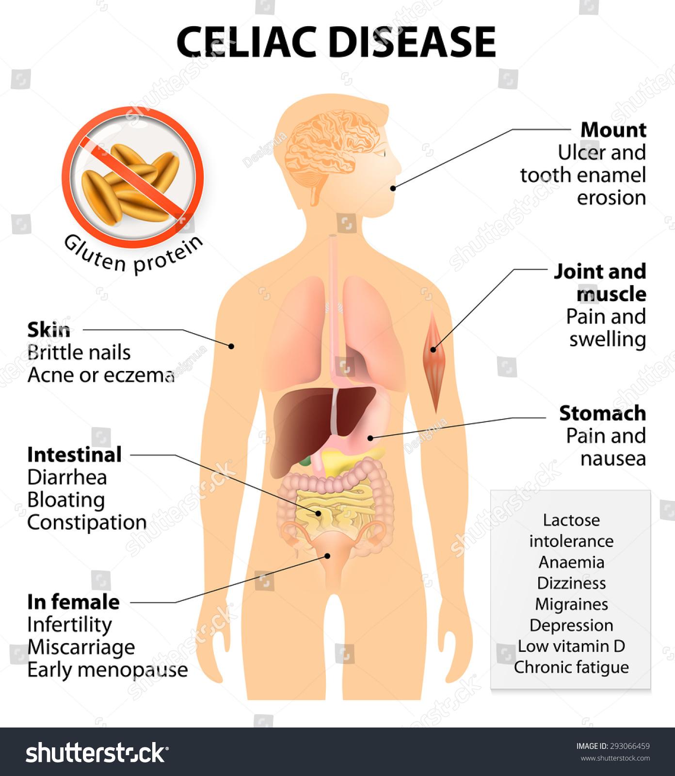 Coeliac Disease Celiac Disease Celiac Sprue Stock Vektorgrafik