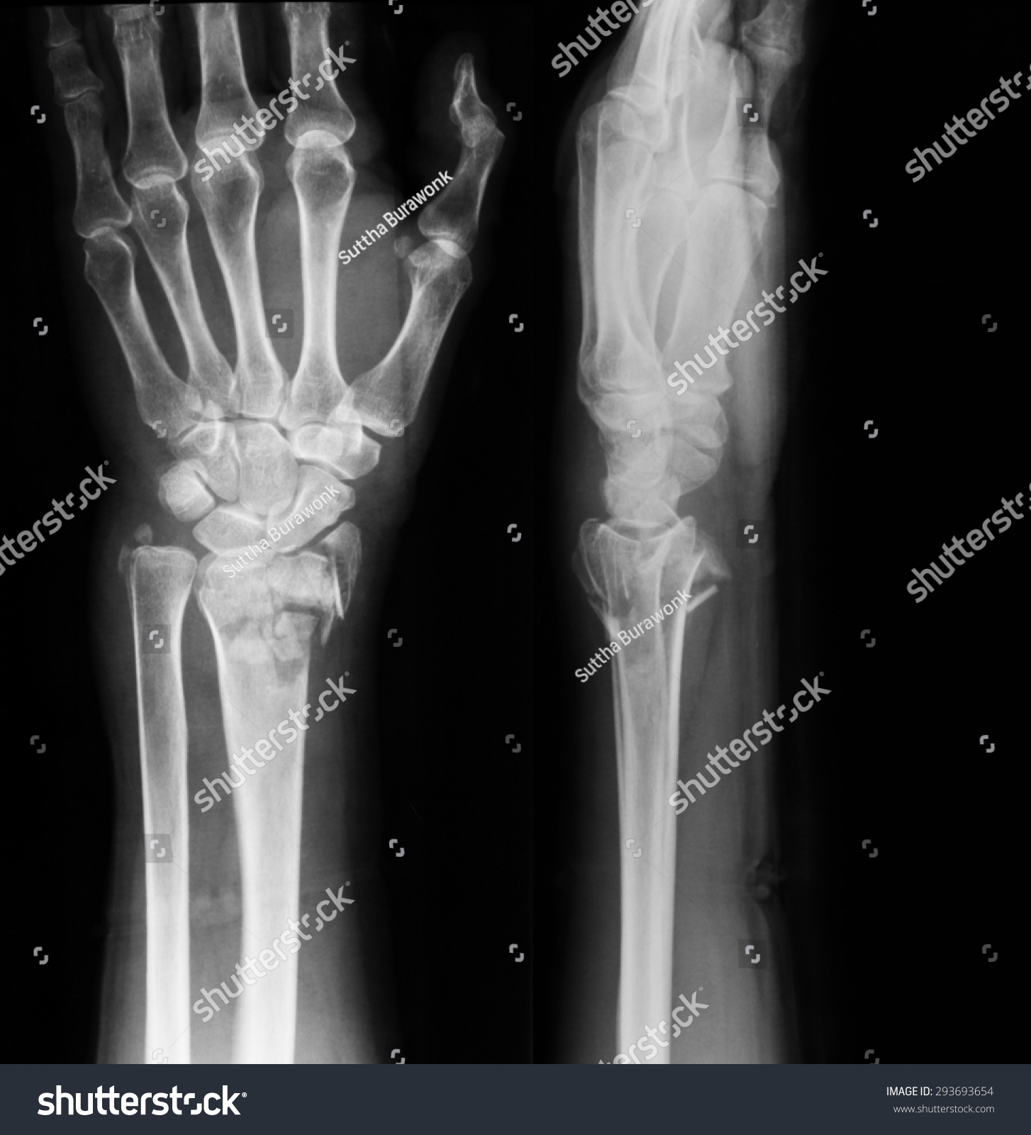 Xray Image Wrist Joint PA Lateral Stock Photo (Royalty Free ...