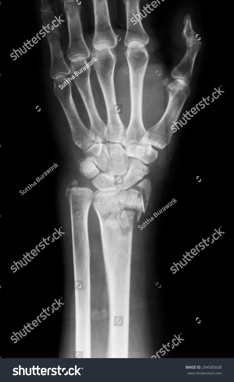 Xray Image Wrist Joint AP View Stock Photo (Edit Now) 294585608 ...