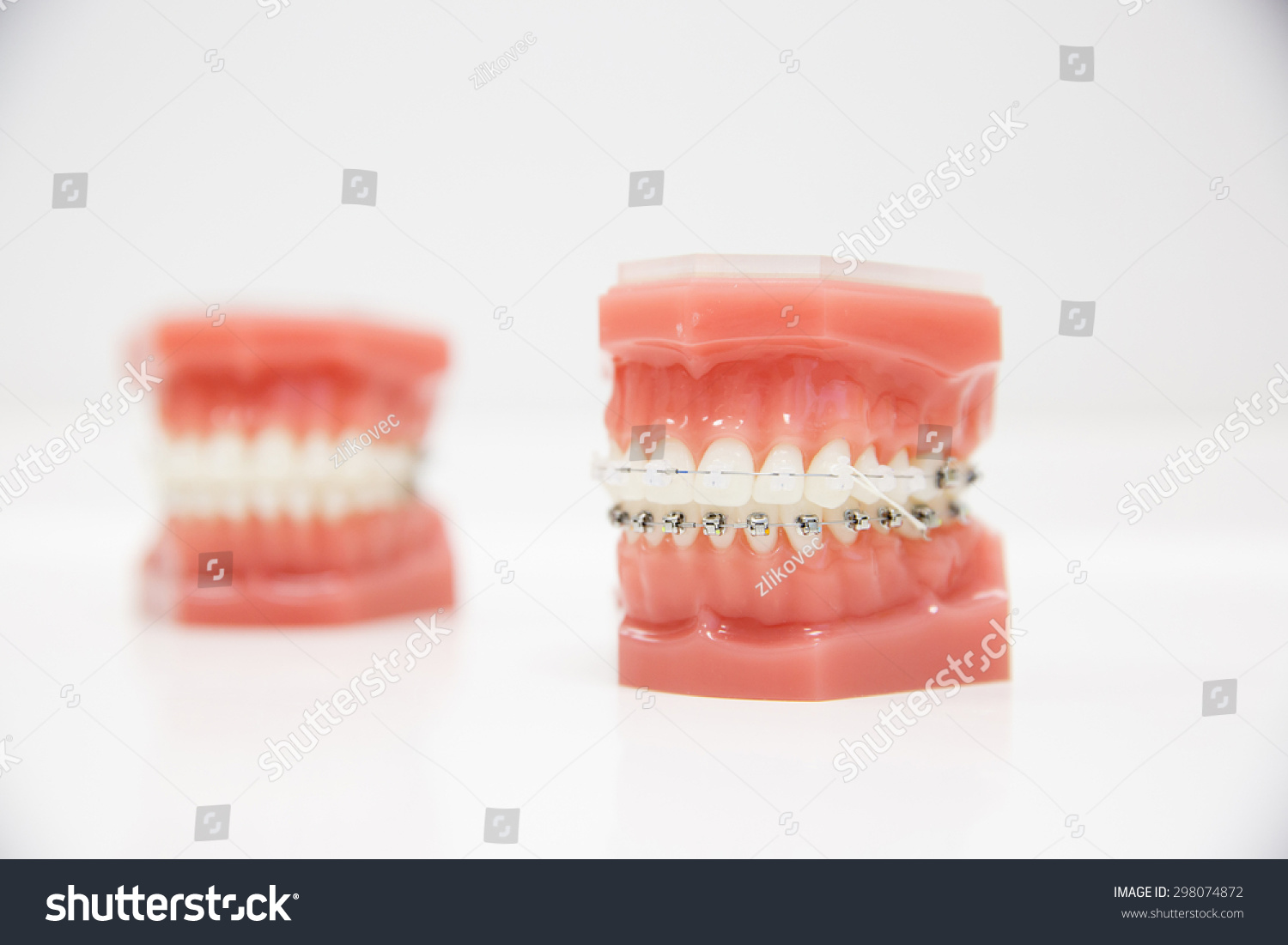 Superb Model Human Jaw Wire Braces Attached Stock Photo Edit Now Wiring Digital Resources Cettecompassionincorg