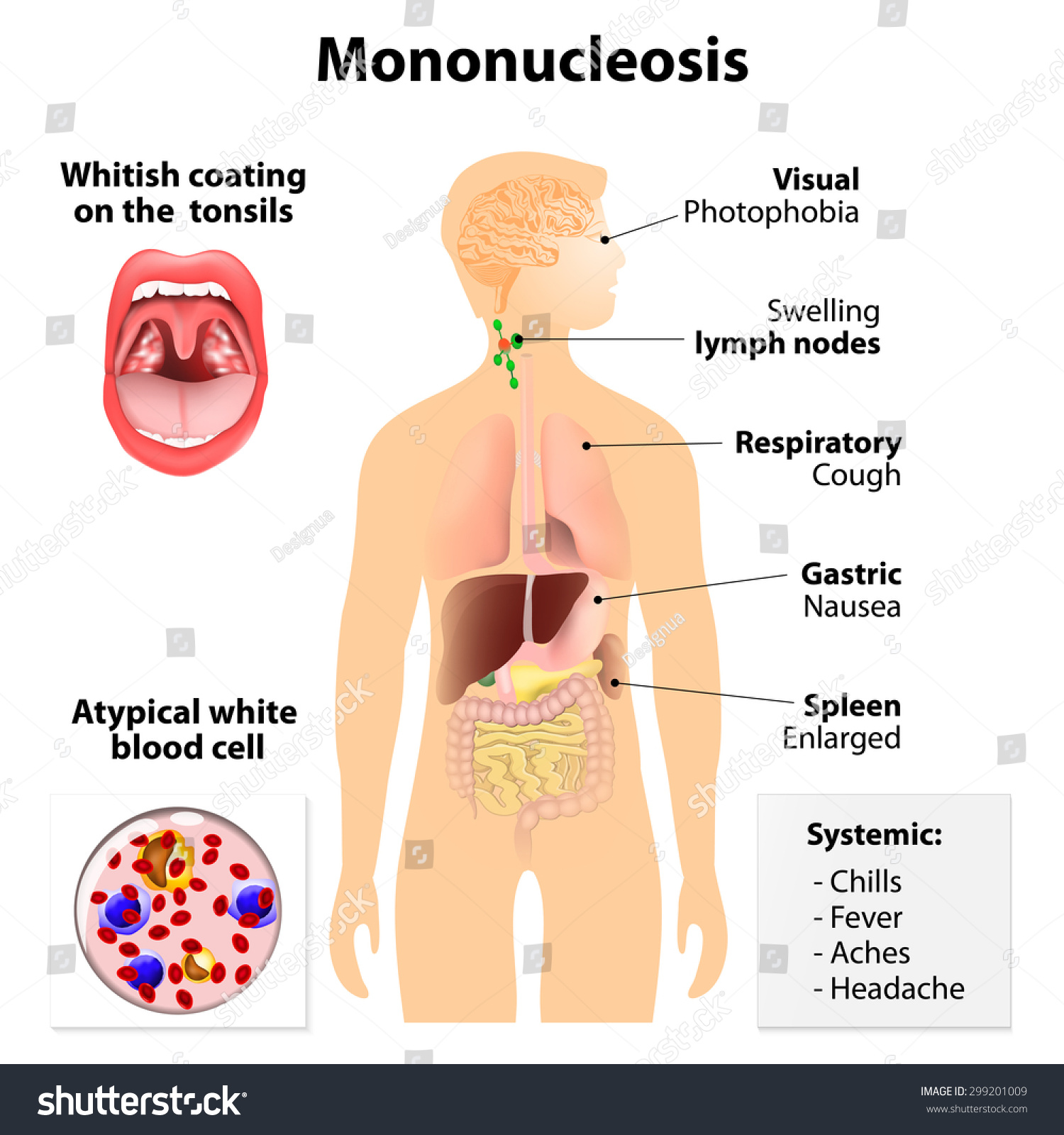 Infectious mononucleosis in adults