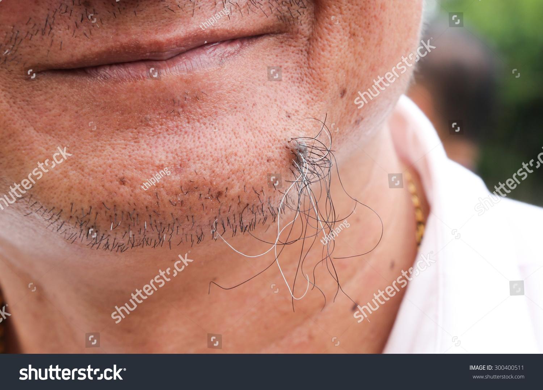 Ingrown Hairs Dear Idiopat...