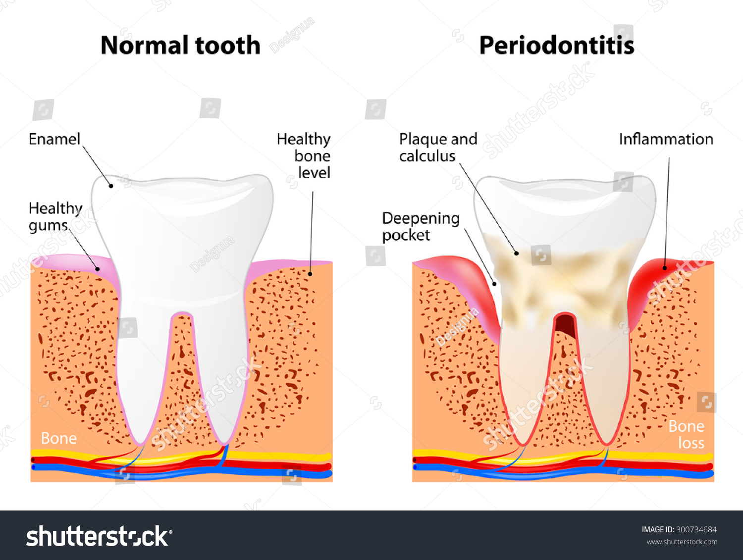 Periodontitis is a inflammatory diseases affecting the periodontium ...