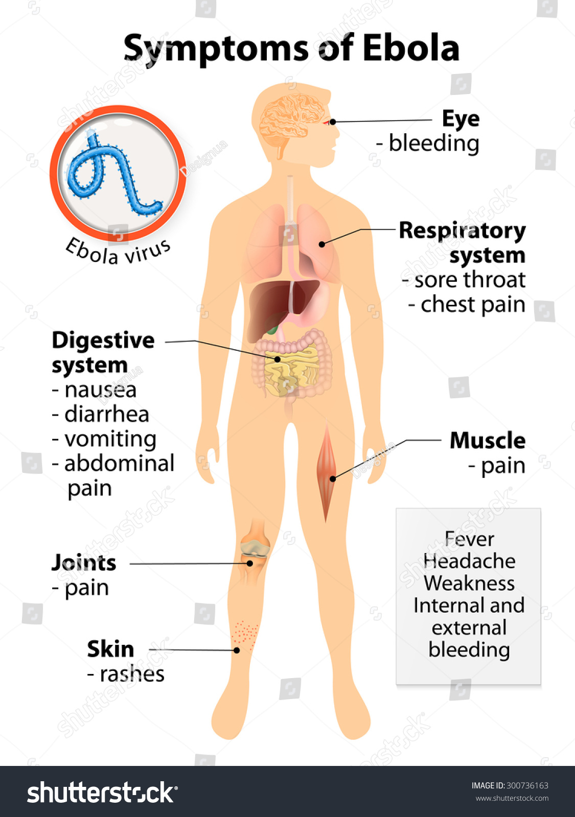 ebola virus disease signs symptoms human stock illustration, Muscles