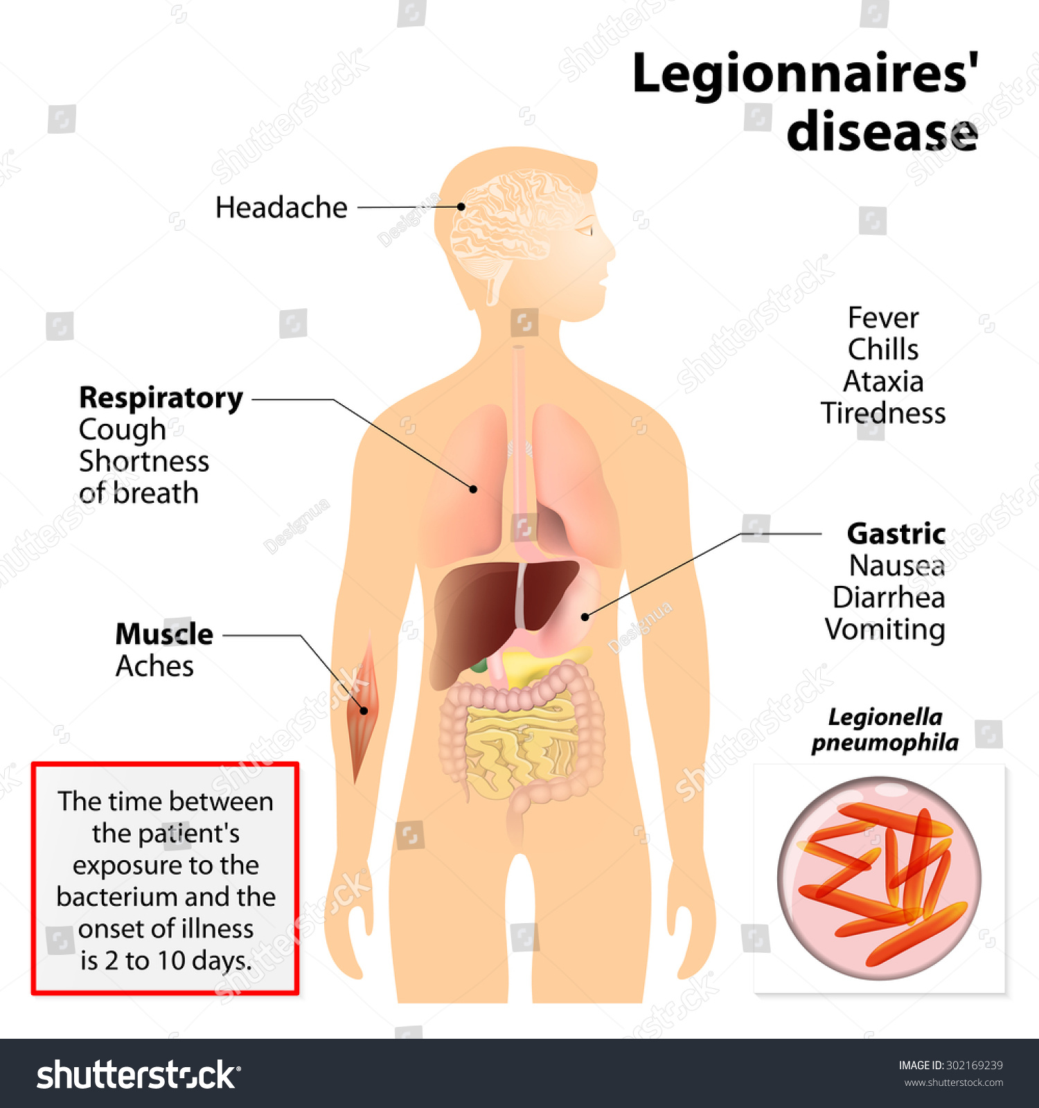 legionnaires disease legionellosis legion fever signs stock, Human Body