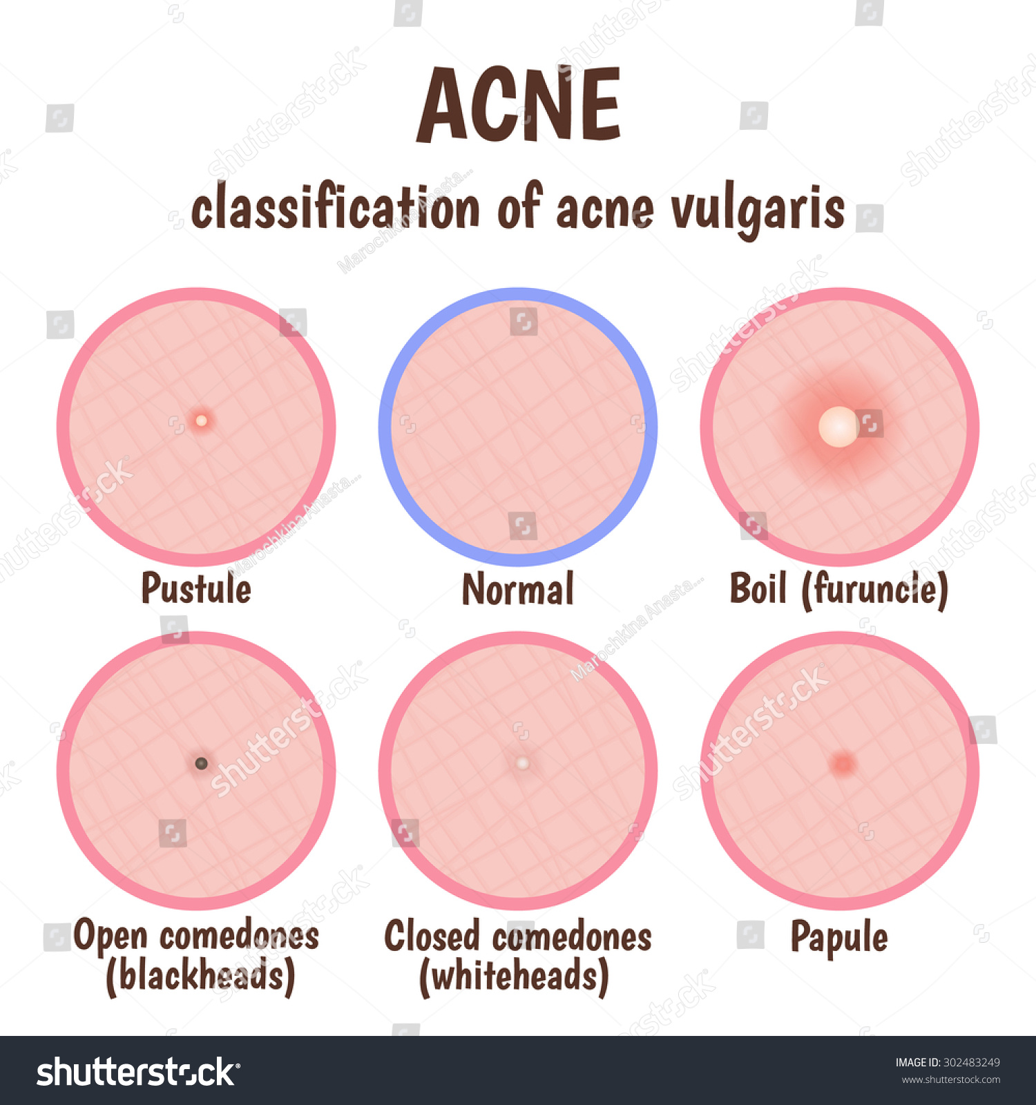 Acne In Teens   Learn Pediatrics  Closed Vs Open Comedones
