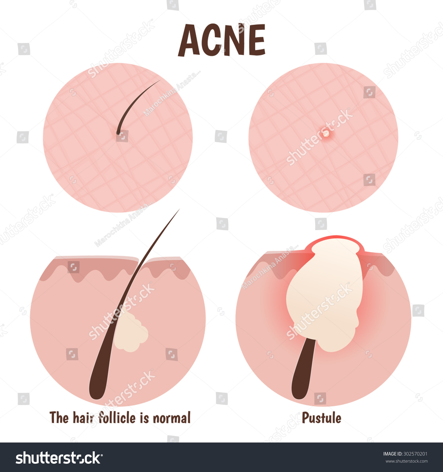 structure hair follicle problem skin pustules stock vector, Skeleton