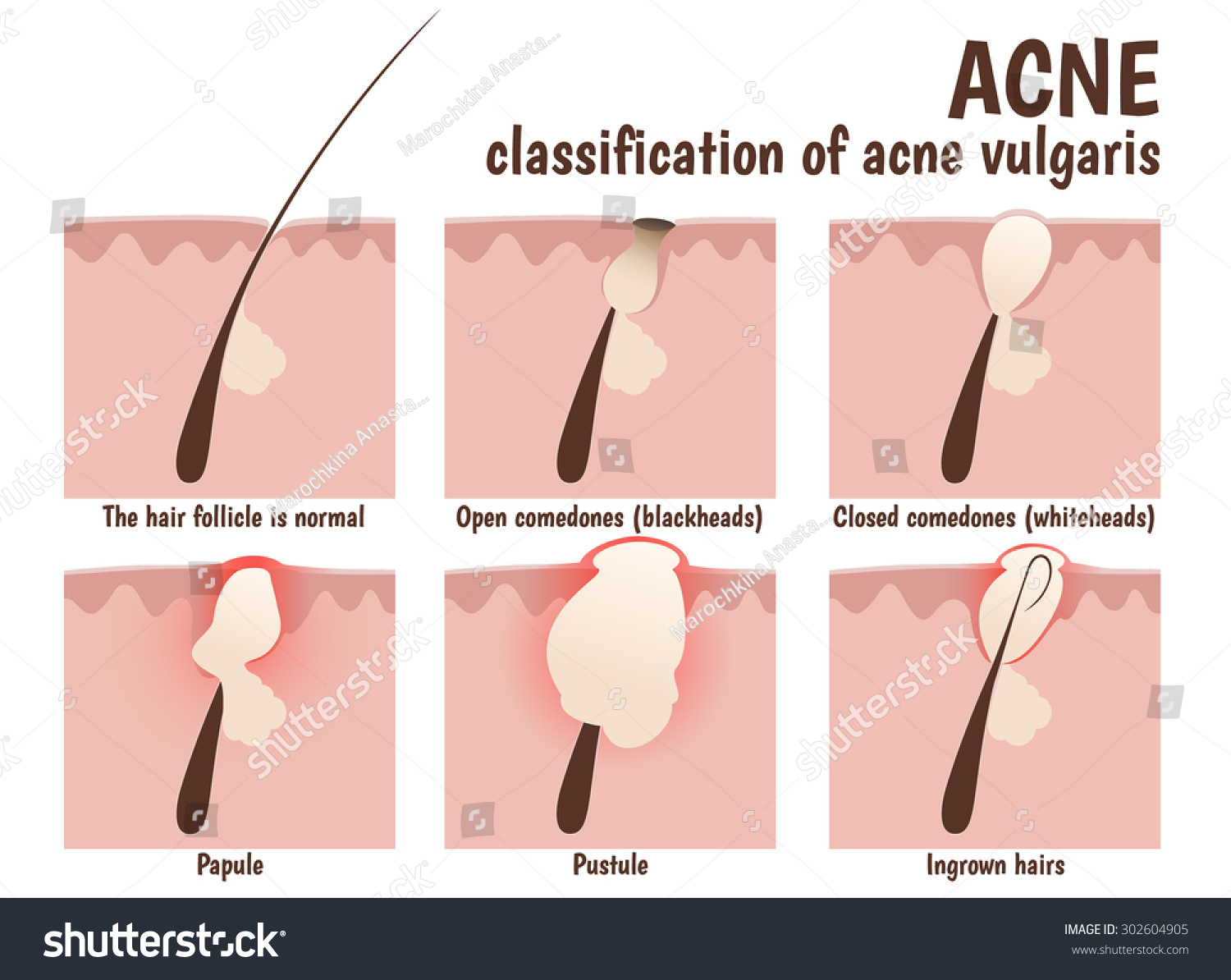 Structure Hair Follicle Problem Skin Pustules Stock Vector