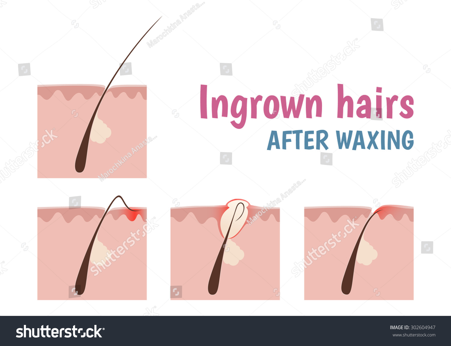 Structure Hair Follicle Ingrown Hairs When Stock Vector Royalty