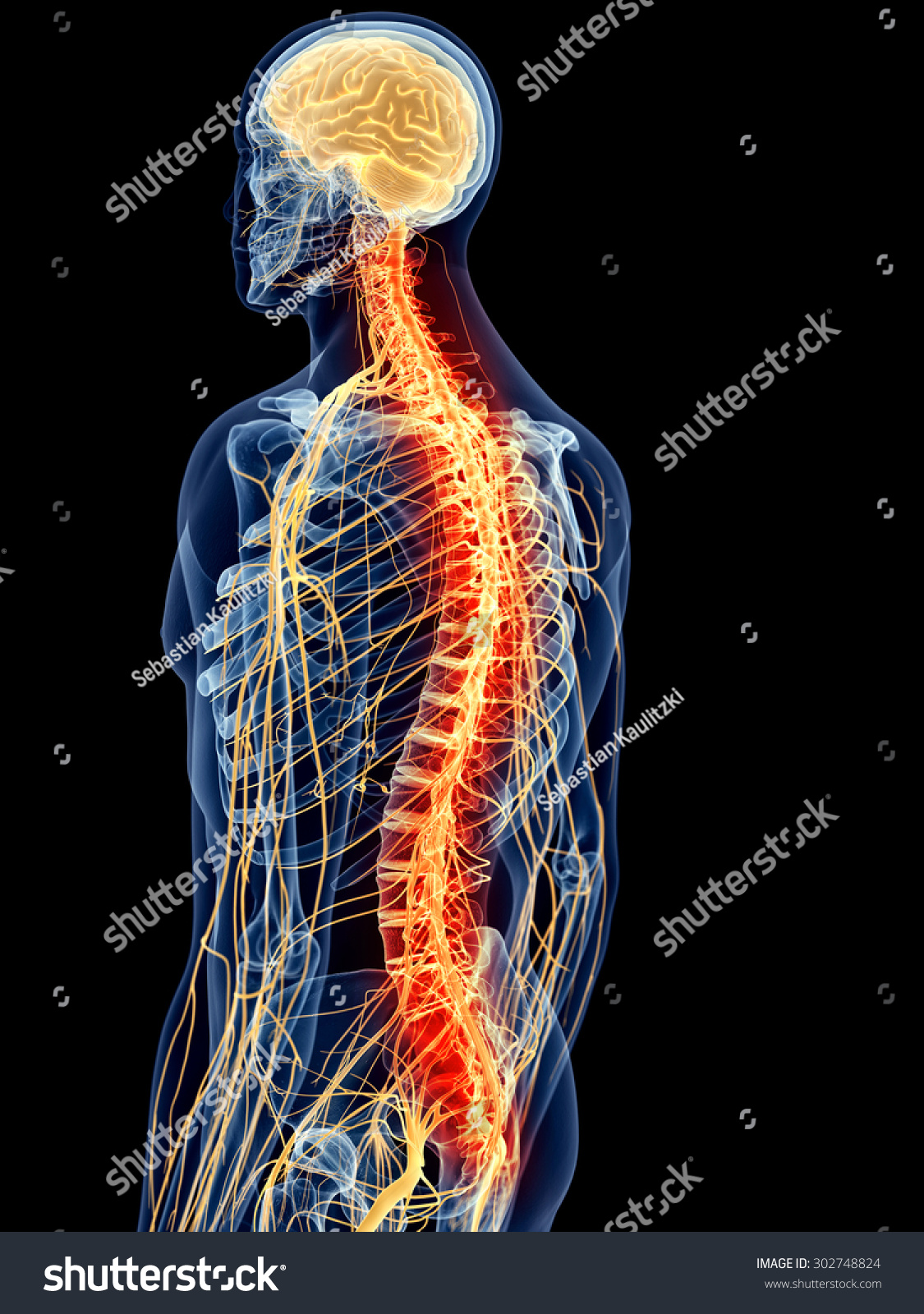 Medically Accurate Illustration Painful Spine Stockillustration