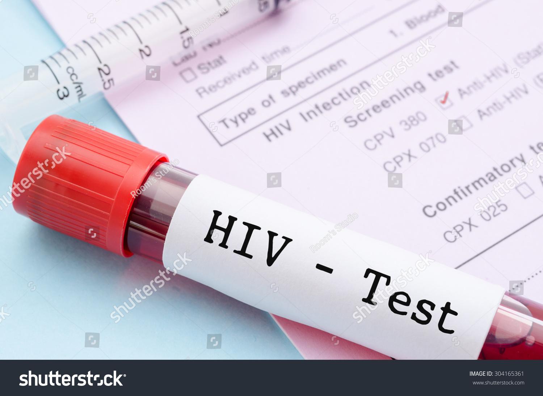 norsk eskortejente hiv test stavanger