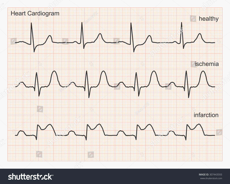Heart Cardiogram Waves Three Types Cardiograms Stock Vector ...