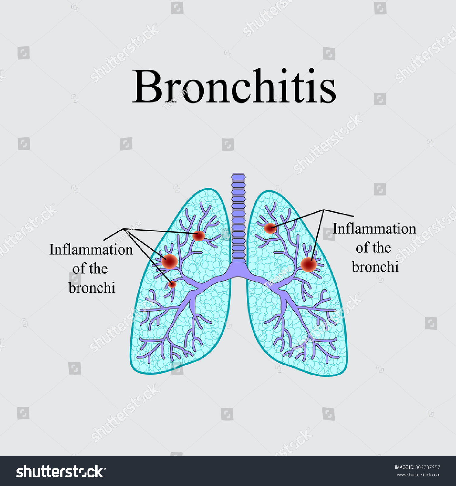 a description of bronchitis a inflammation of the bronchi