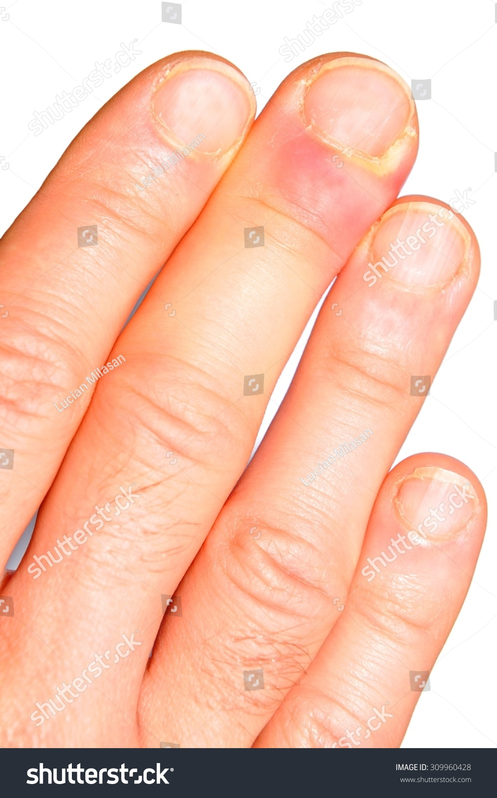 Hand Finger Infection Detail Stock Photo (Safe to Use) 309960428 ...