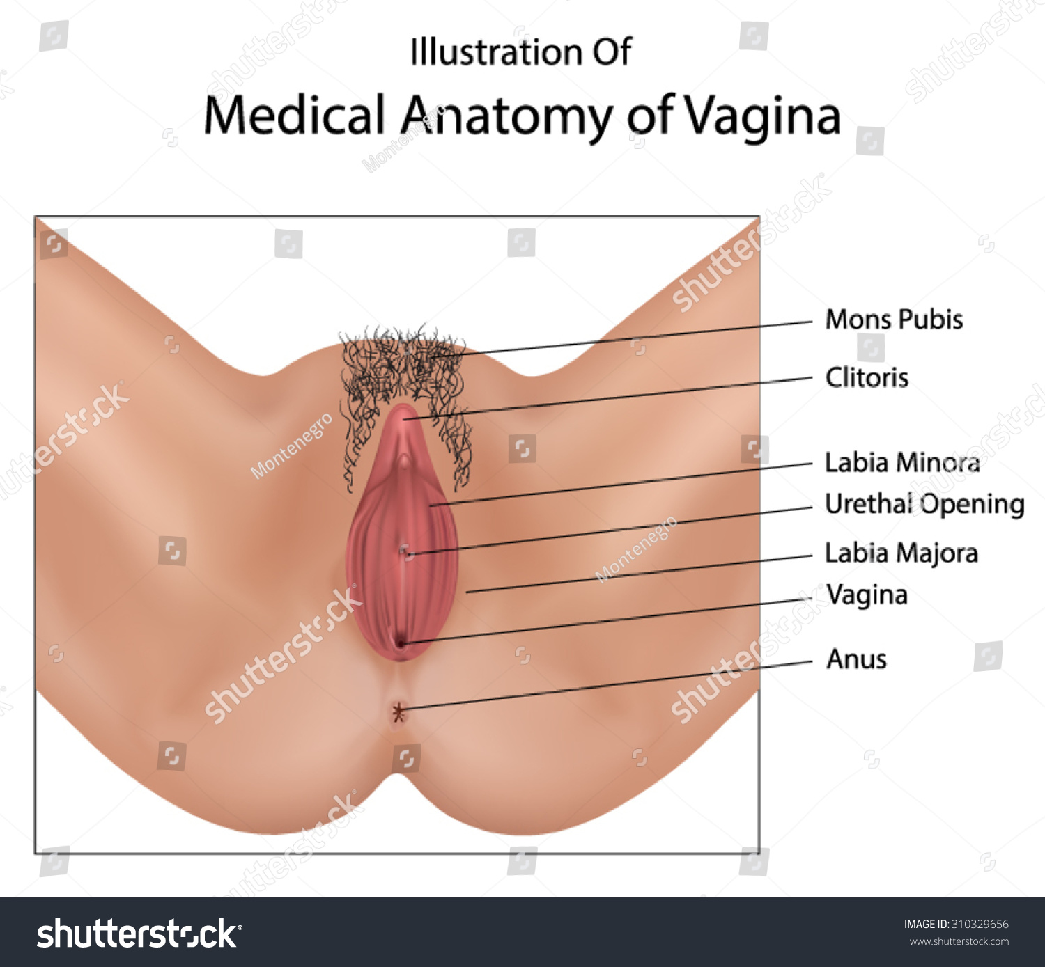 Medical picture of vulva