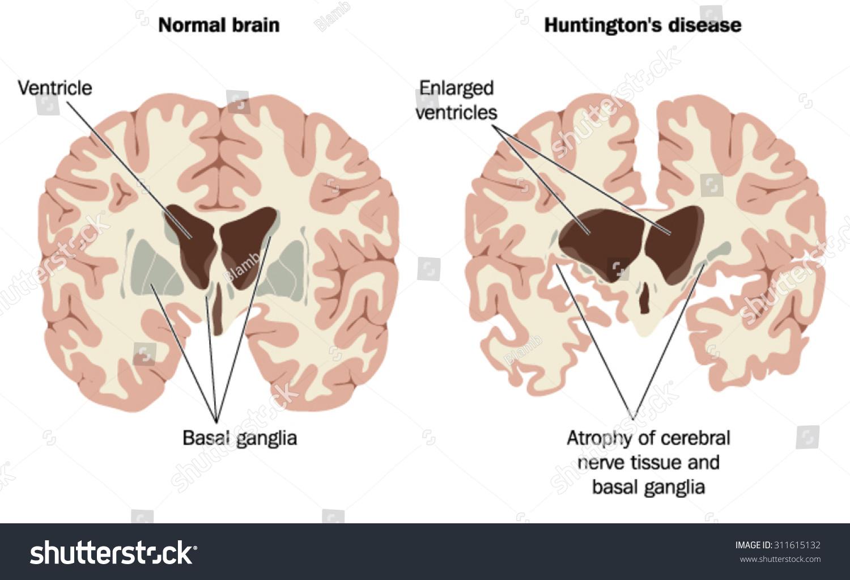 Normal Brain Brain Huntingtons Disease Showing Stock