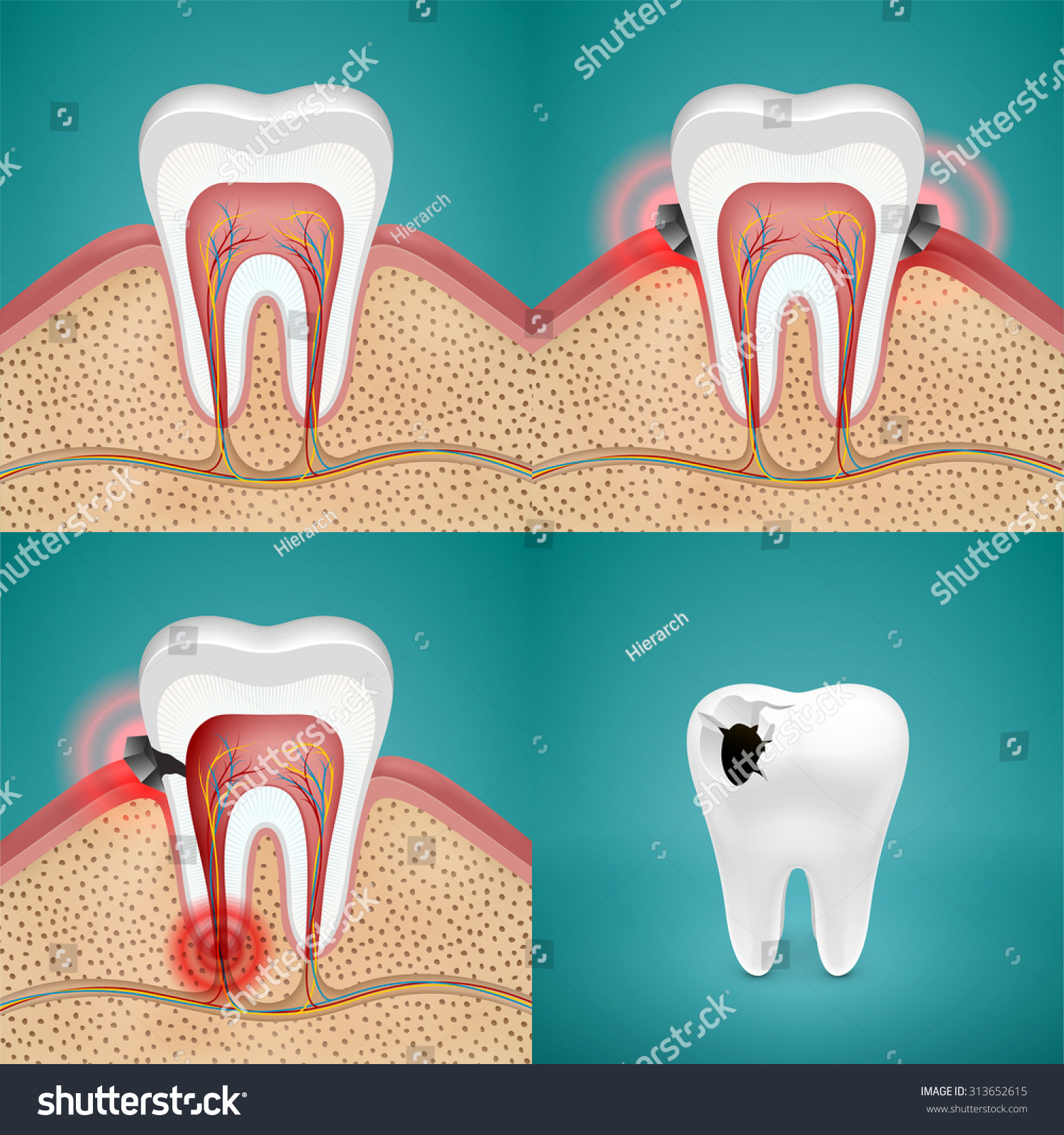 Stages Of Tooth Caries Stock Illustration Illustration Of