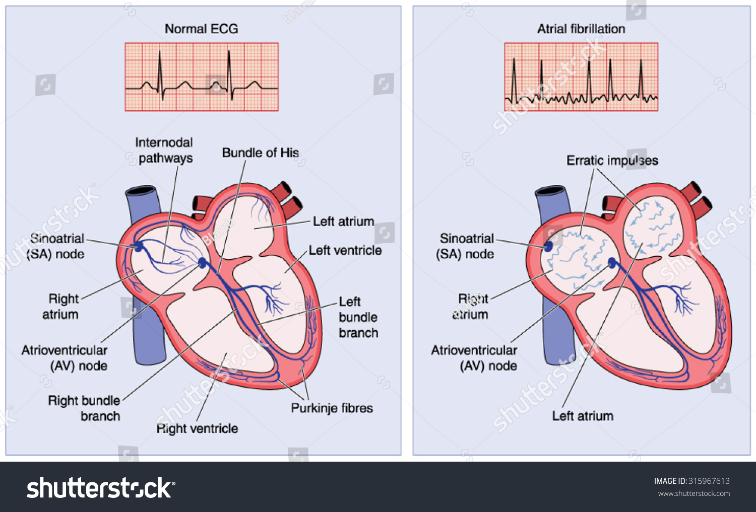 Drawing heart electrical conduction system showing stock vector drawing of the heart electrical conduction system showing normal activity and erratic impulses in atrial fibrillation ccuart Choice Image