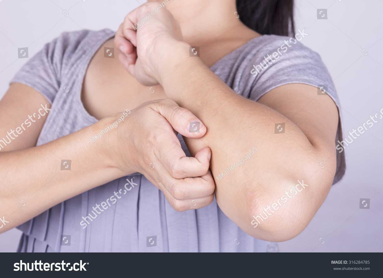 Women Scratch Itchy Skin Concept Dermatitis Stock Photo (Edit Now ...