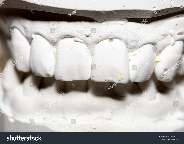 Dental Gypsum Plaster : Dental casting gypsum model plaster cast stomatologic