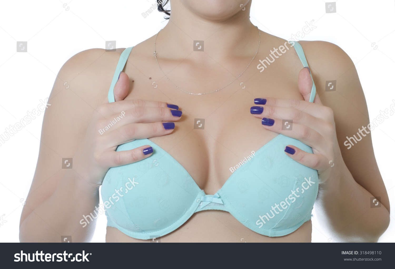 Silicone Breast Implant Pictures 114