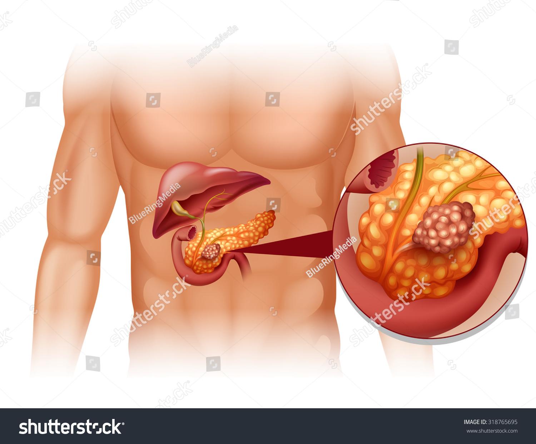 Pancreas Cancer Human Body Illustration Stock Vektorgrafik