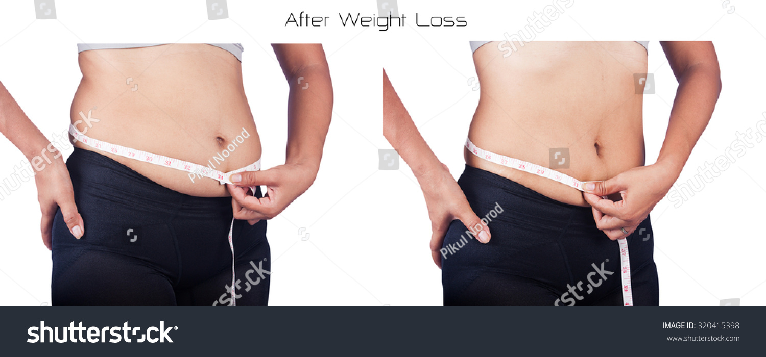 Belly fat before and after women