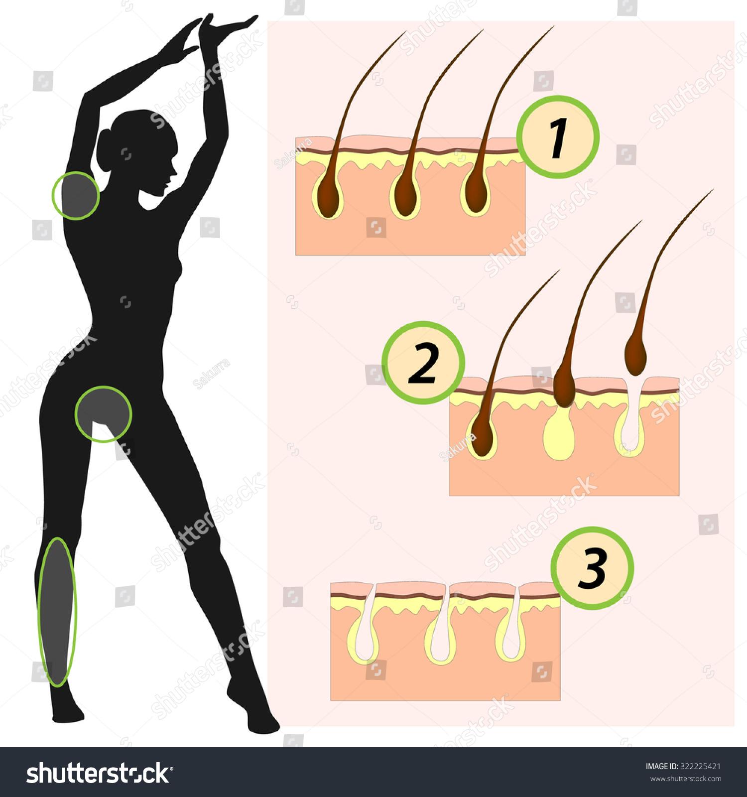Epilator  Different Methods Of Hair Removal  Depilation Stock Vector Illustration 322225421