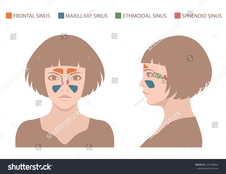 Sinusitis Disease Vector Nose Illustration Sinus Stock Vector ...