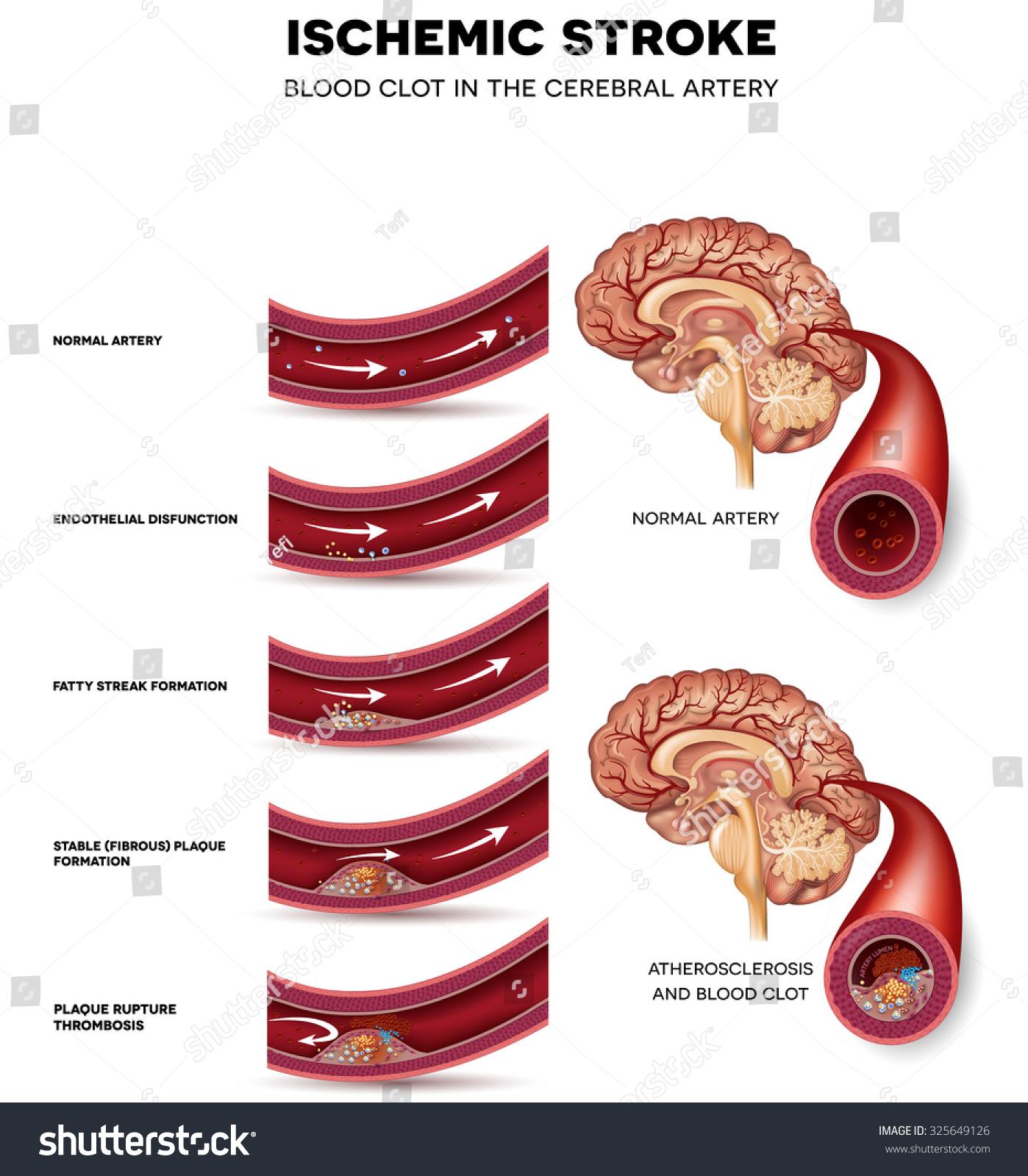 Blood Clot Formation Cerebral Artery Blocked Stock Illustration ...