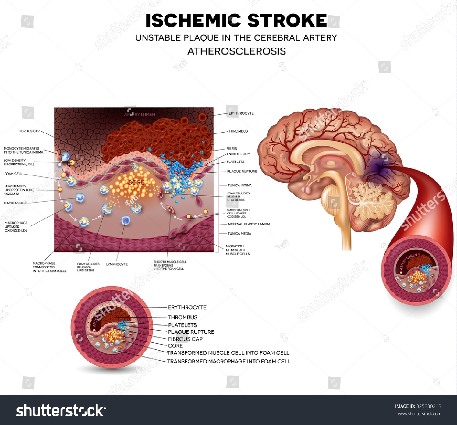 Ischemic Stroke In The Cerebral Artery Unstable Plaque. Horse Trail Signs. Infants Signs. Halo Signs. Hypothyroid Signs. 1st Floor Signs. Car Wash Signs. Meal Signs. Red Circle Signs
