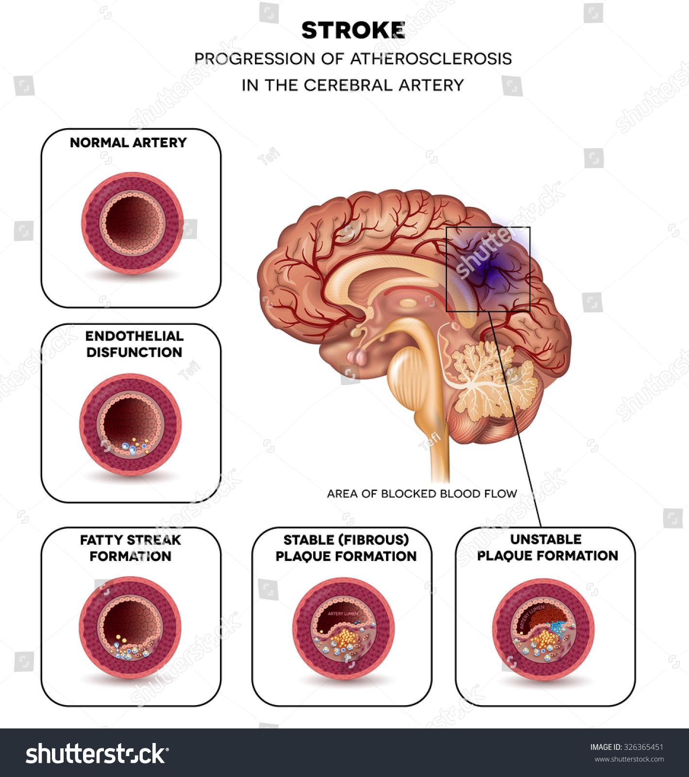Stroke Cerebral Artery Atherosclerosis Progression Step Stock Vector ...