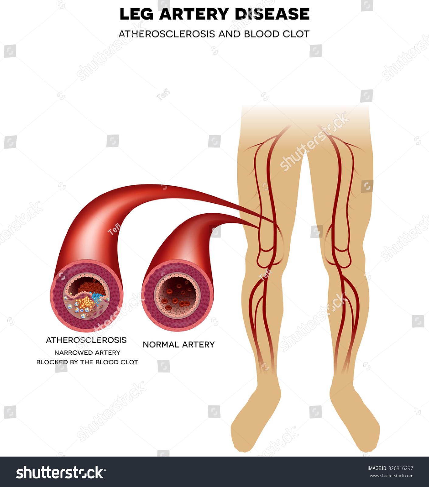 Healthy Leg Artery Peripheral Arterial Disease Stock Illustration
