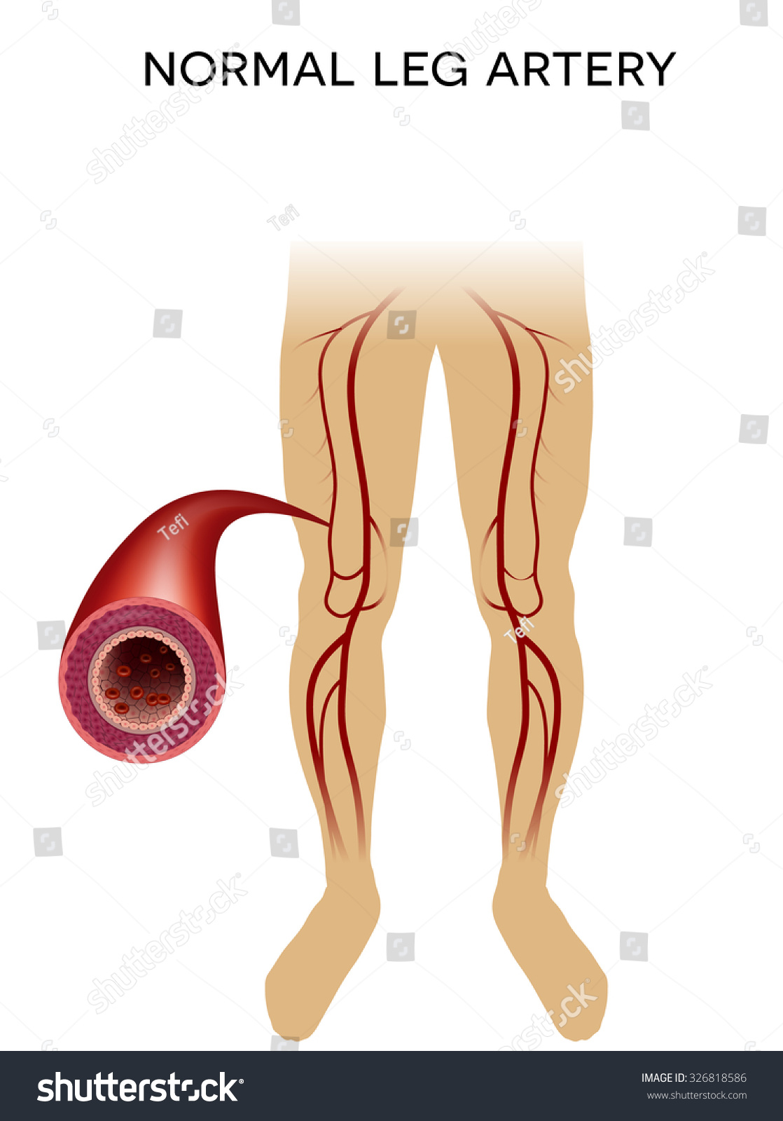 Healthy Leg Artery On White Background Stock Vector 326818586 ...